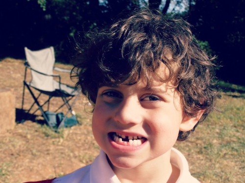 Coops loses a tooth